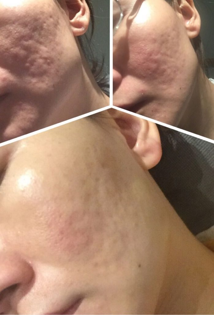 Before and After Skinboosters